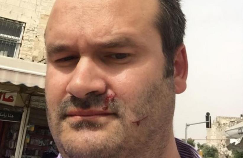Opinion editor Seth Frantzman after being attacked in Jerusalem peace event (photo credit: SETH J. FRANTZMAN)