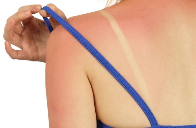 Woman with sunburn (illustrative). (photo credit: INGIMAGE)