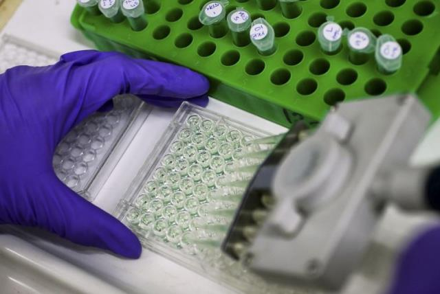 A scientist prepares protein samples for analysis in a lab at the Institute of Cancer Research in Sutton (photo credit: REUTERS)