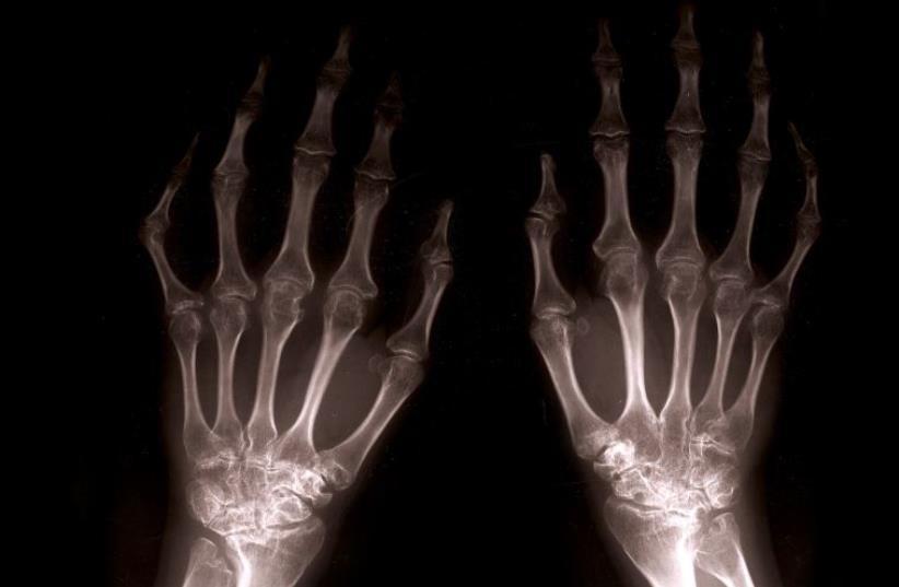 Close up of xray hands (photo credit: INGIMAGE)