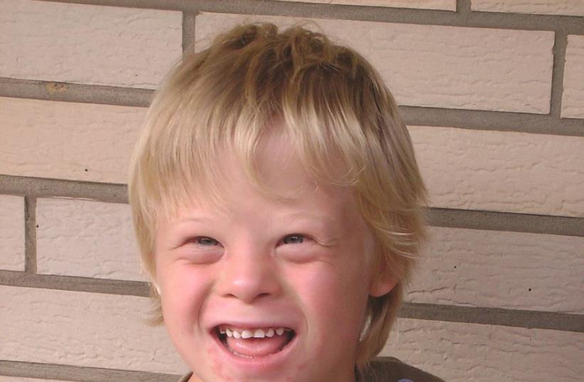 Un enfant atteint du syndrome de Down (photo credit: PIXABAY)