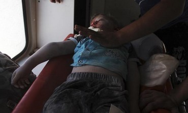 An injured child from what activists said was an attack from Assad forces.
