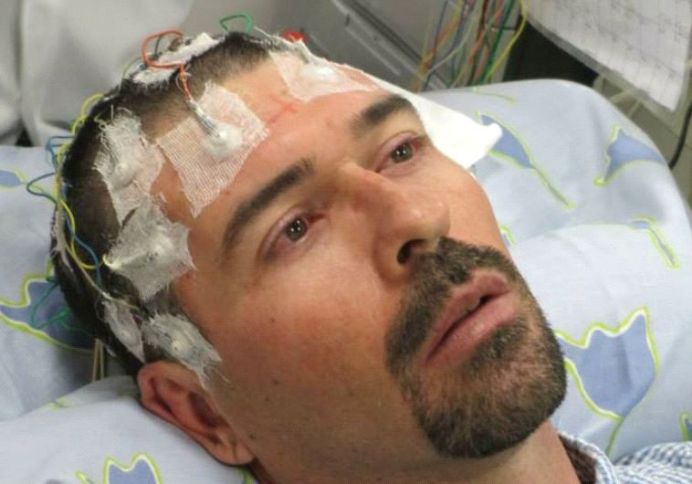 Electrodes connected to an EEG help to track seizures caused by a brain tumor that is an inoperable cancer (photo credit: GAL SELA)
