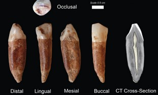 Teeth found at the Qesem cave near Rosh Ha'ayin