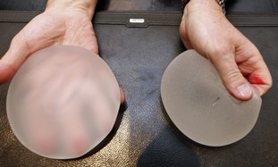 Silicone gel breast implants in clinic in Nice