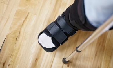 A broken leg.