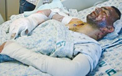 Firebombing victim Jamila Jayada
