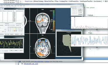 FUNCTIONAL MAGNETIC resonance imaging.