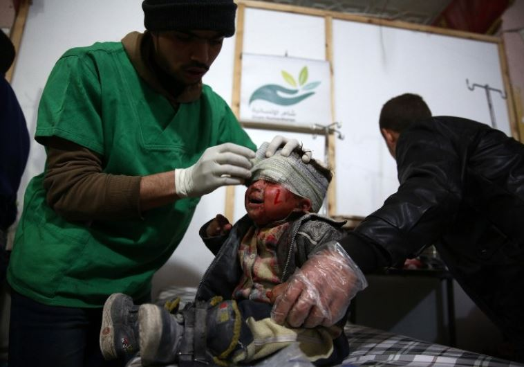 A Syrian child receives treatment at a make-shift hospital