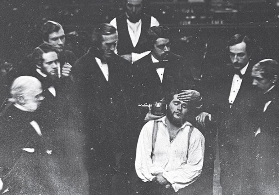early ether anesthesia