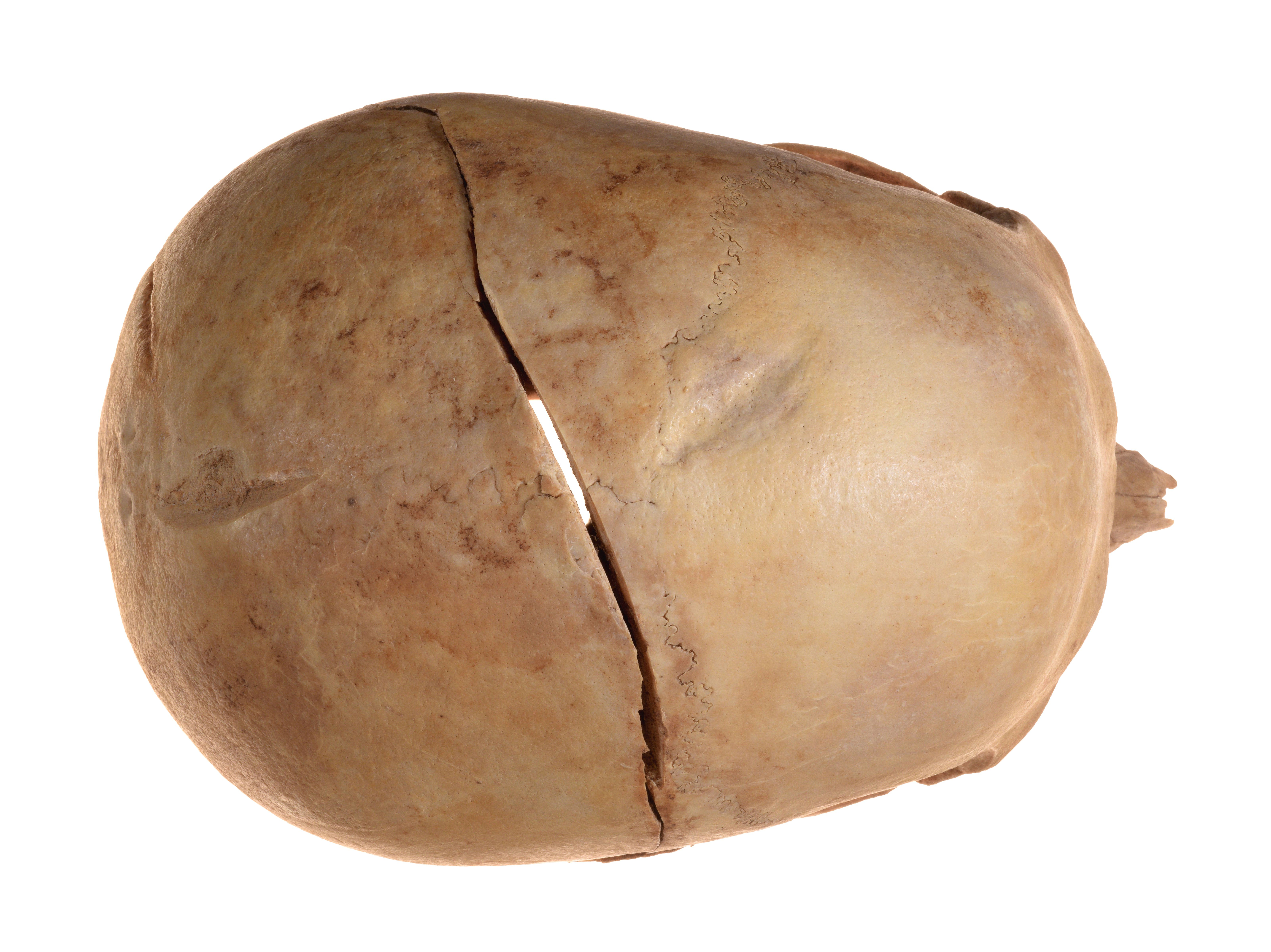 The cracks in the skull (Credit: Clara Amit, Israel Antiquities Authority)